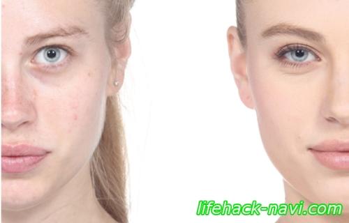 いちご鼻 治し方 皮膚科