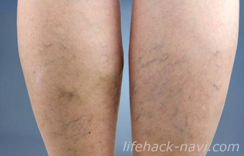 ふくらはぎ むくみ 下肢静脈瘤