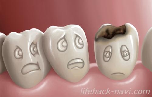 歯 黄色 原因 虫歯