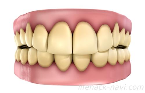 歯 黄色 原因