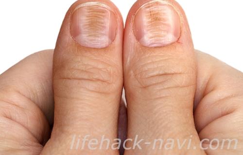 爪 でこぼこ 原因 横線