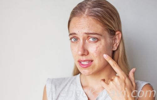 赤ら顔 原因 アレルギー