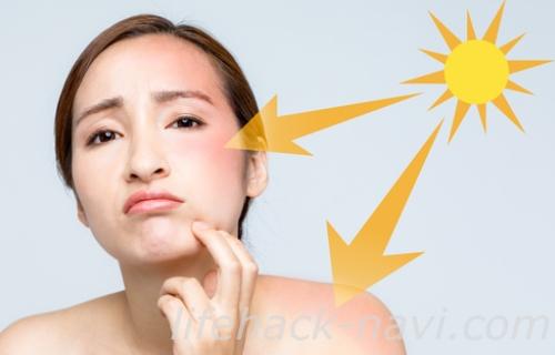 赤ら顔 原因 紫外線