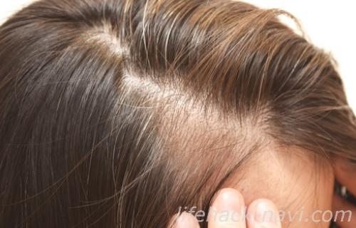 髪の毛 パサパサ 原因 地肌トラブル