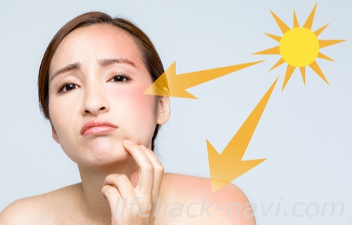 ほくろ 多い 原因 紫外線