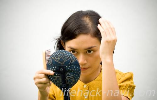 ホルモンバンス乱れ 症状 薄毛