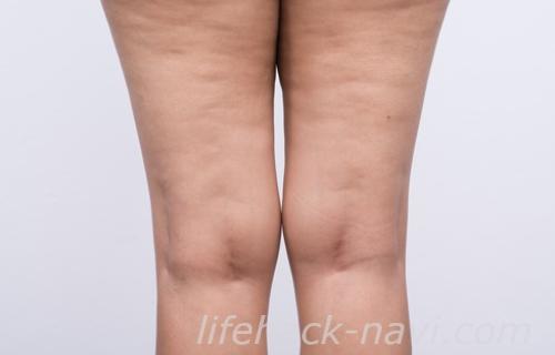 太もも 肉割れ 消す 白い線