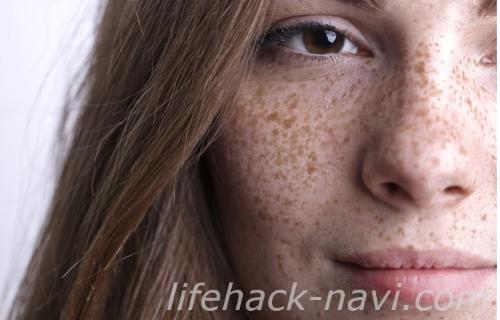 炭酸水 洗顔 効果 シミ