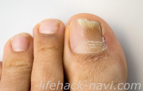 爪 割れる 原因 足