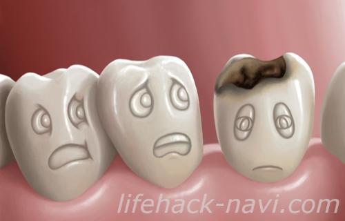 顎 吹き出物 原因 虫歯