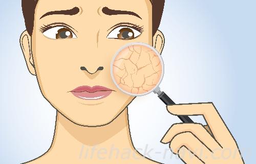静電気 体質 原因 乾燥肌