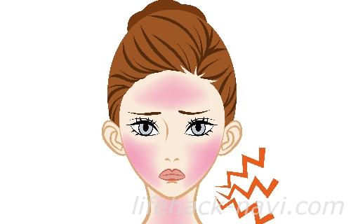 日光皮膚炎 原因