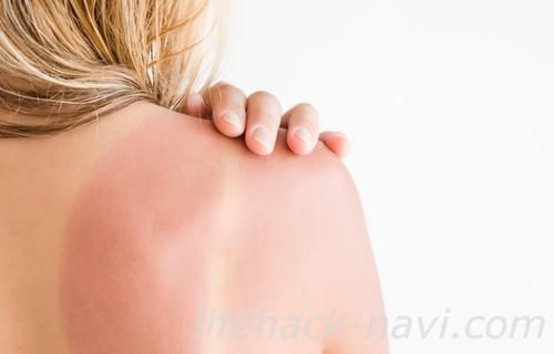 日光皮膚炎